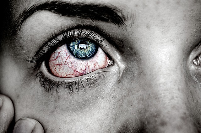 Ochii rosii – cauze si remedii