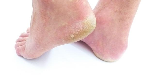 Metode naturiste prin care poti trata ciuperca piciorului