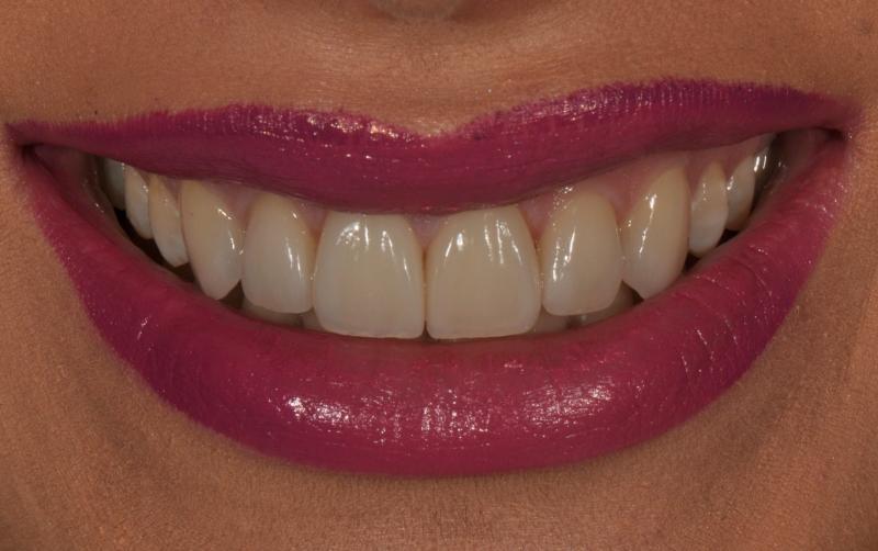 Rezultat fatete dentare