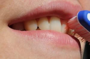 9 alimente care iti afecteaza sanatatea dintilor