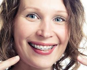 Top 5 motive pentru ca in 2018 sa iti pui in sfarsit aparat dentar