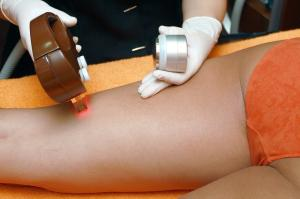 Beneficiile epilarii cu laser