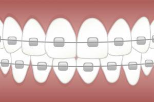 Alimente pe care trebuie sa le eviti daca porti aparat dentar